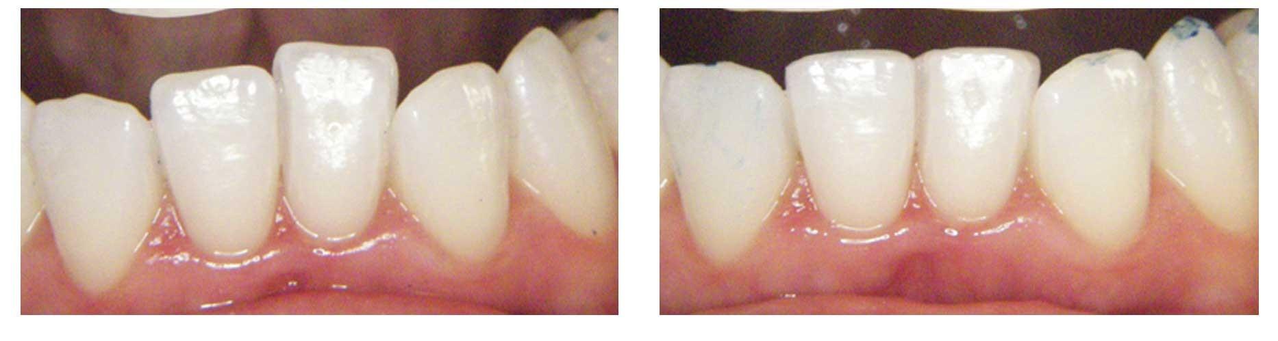 Contorneado de dientes