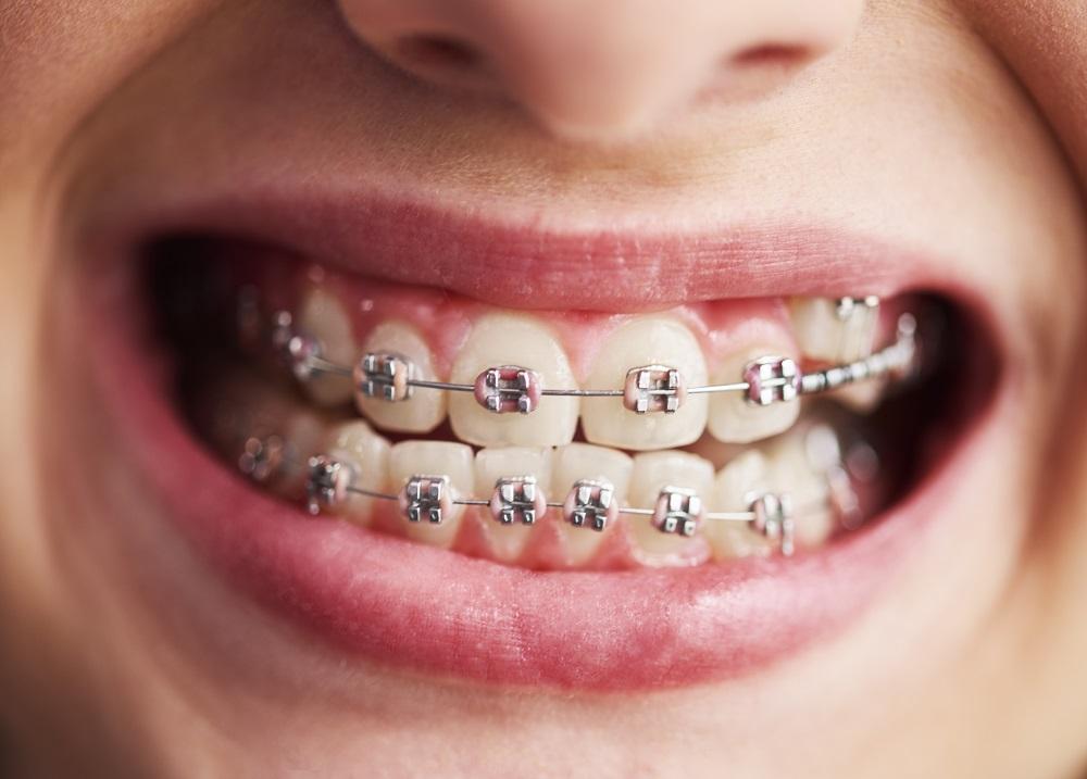 Mejorar tu dentadura